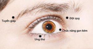 8 dấu hiệu bất thường ở mắt cảnh báo về sức khỏe của bạn