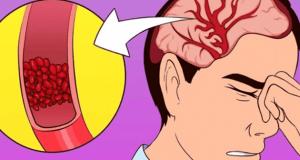 Thấy bạn bè người thân có dấu hiệu này lúc ăn cơm hãy đưa đi viện gấp, coi chừng xuất huyết não